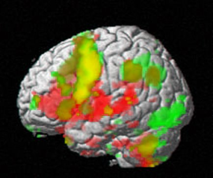 fMRI Scan Image